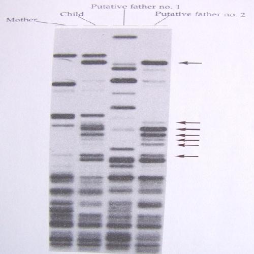 Molecular Typing of Infectious Disease تایپینگ مولکولی بیماری های عفونی به زبان انگلیسی